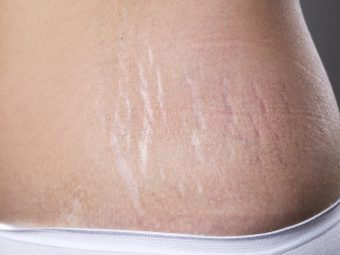 How To Remove Stretch Marks After Pregnancy: 16 Home Remedies & Medical Treatments