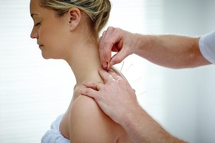 Acupuncture During Pregnancy
