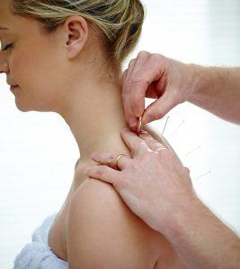 Acupuncture During Pregnancy1