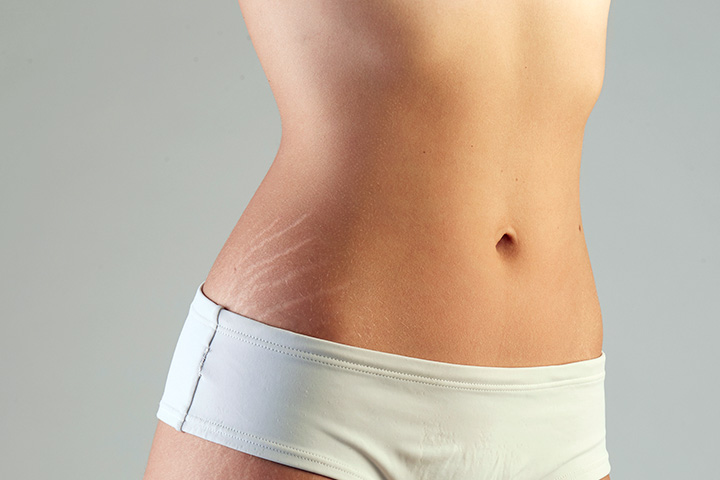 5 Simple Tips To Treat Stretch Marks In Teenagers