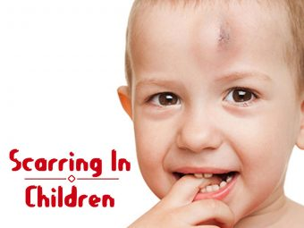 8 Ways To Treat Scars In Children And Tips For Prevention