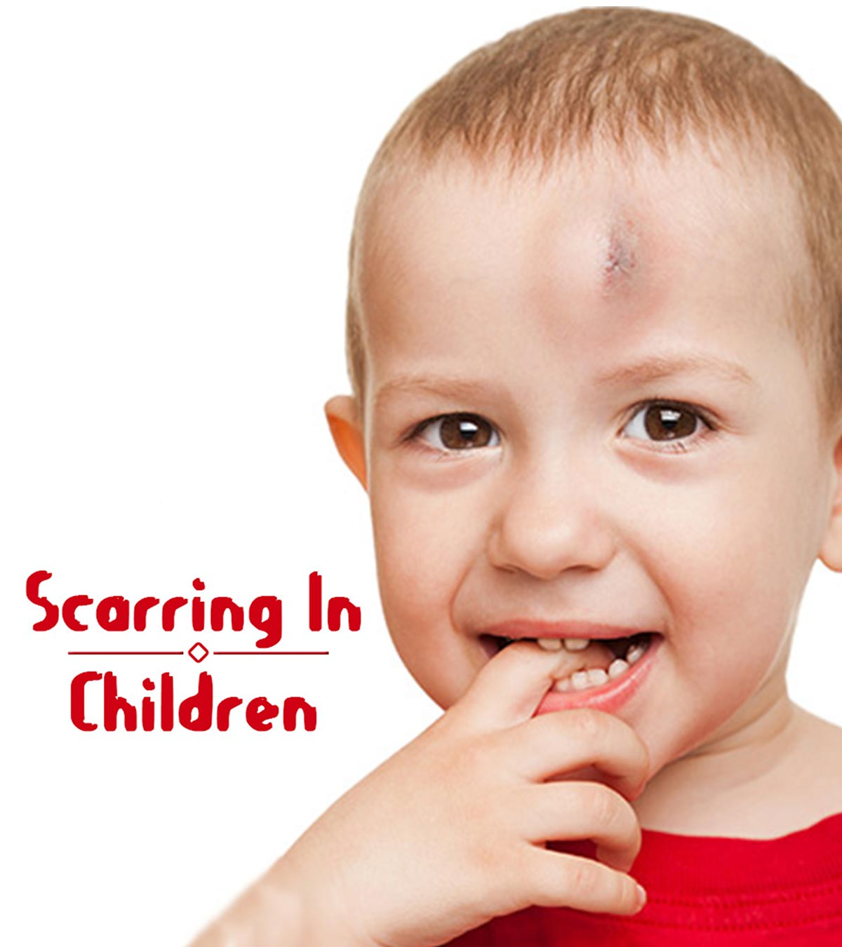 9 Simple Ways To Treat Kids Scars