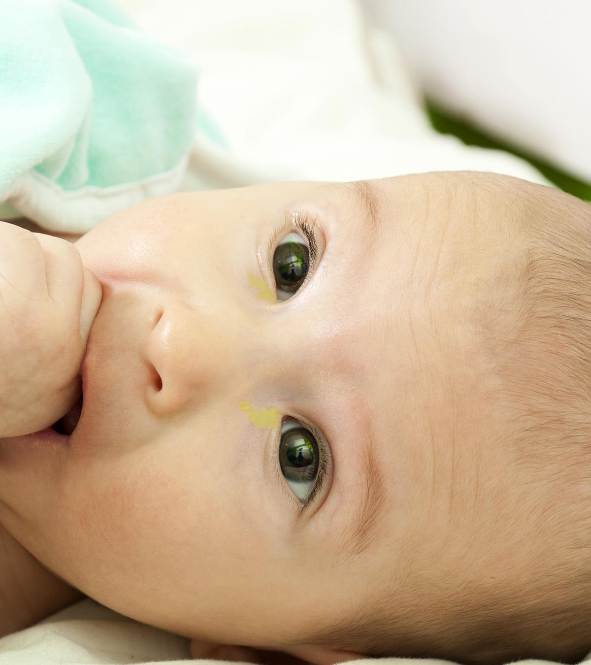 7 Causes Of Sticky Eyes In Newborn Babies And Treatment