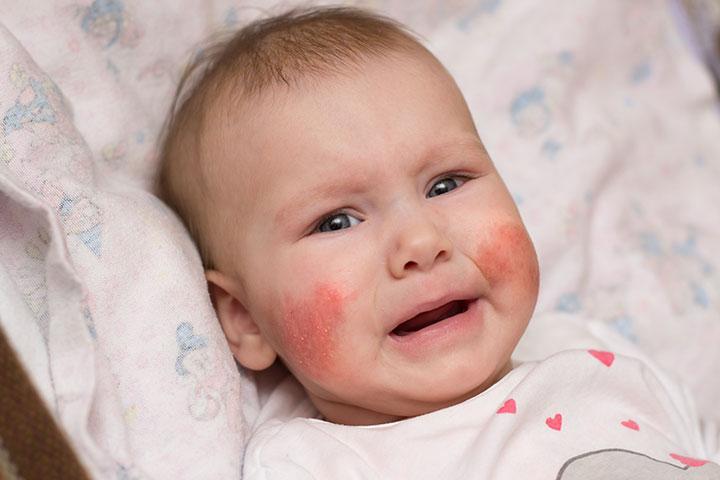 Atopic dermatitis or eczema