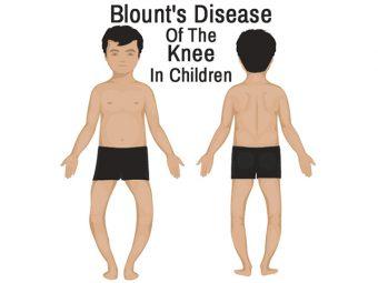 Blount Disease In Children – Symptoms And Treatment