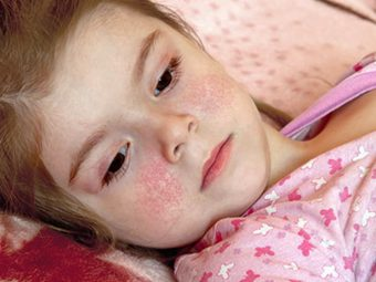 Fifth Disease In Children: Causes, Symptoms, Treatment And Home Remedies