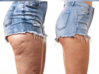 Cellulite In Teens: Causes And Treatment Options To Get Rid Of It
