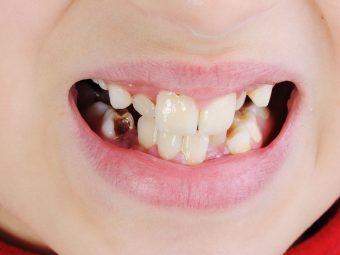 Discolored Teeth In Child: Causes, Treatment, Remedies And Prevention