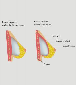 Breastfeed With Implants