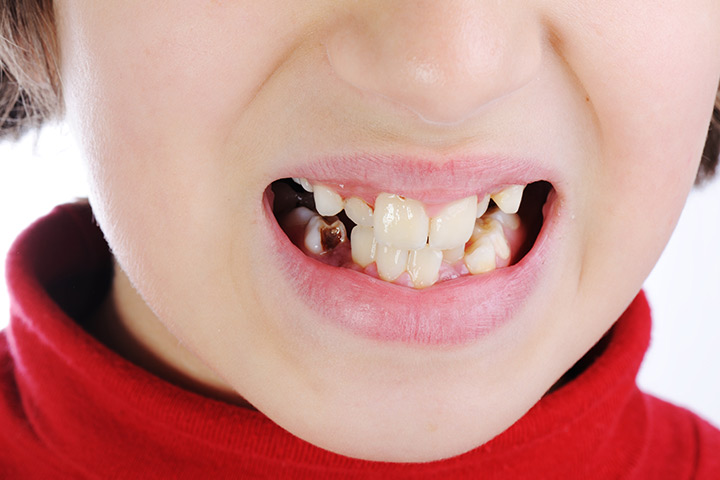 7ae19660a2f9 Is It Normal to Have Small Cracks in My Teeth
