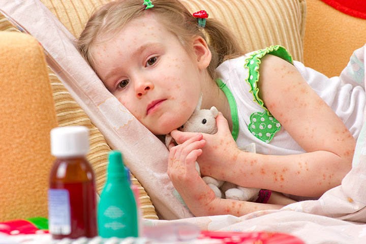Folliculitis In Children – Causes, Symptoms And Treatment