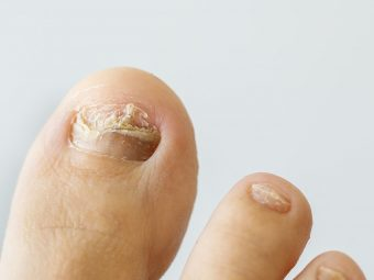 Ingrown Toenails In Kids: Causes, Treatment And Prevention