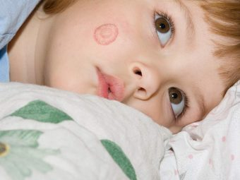Ringworm In Kids: Causes, Symptoms And Treatment