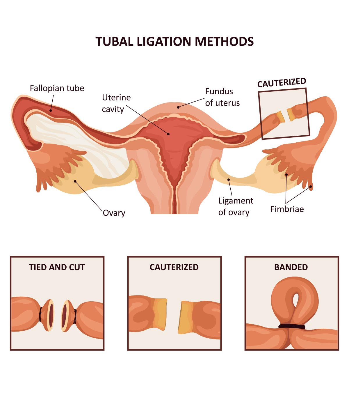 Tubal Ligation: Benefits, Risks And Alternatives