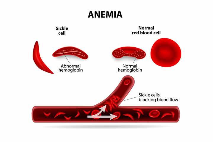 Sickle Cell Disease (SCD) In Babies