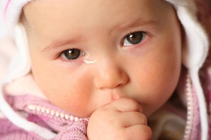 Watery Eyes In Babies