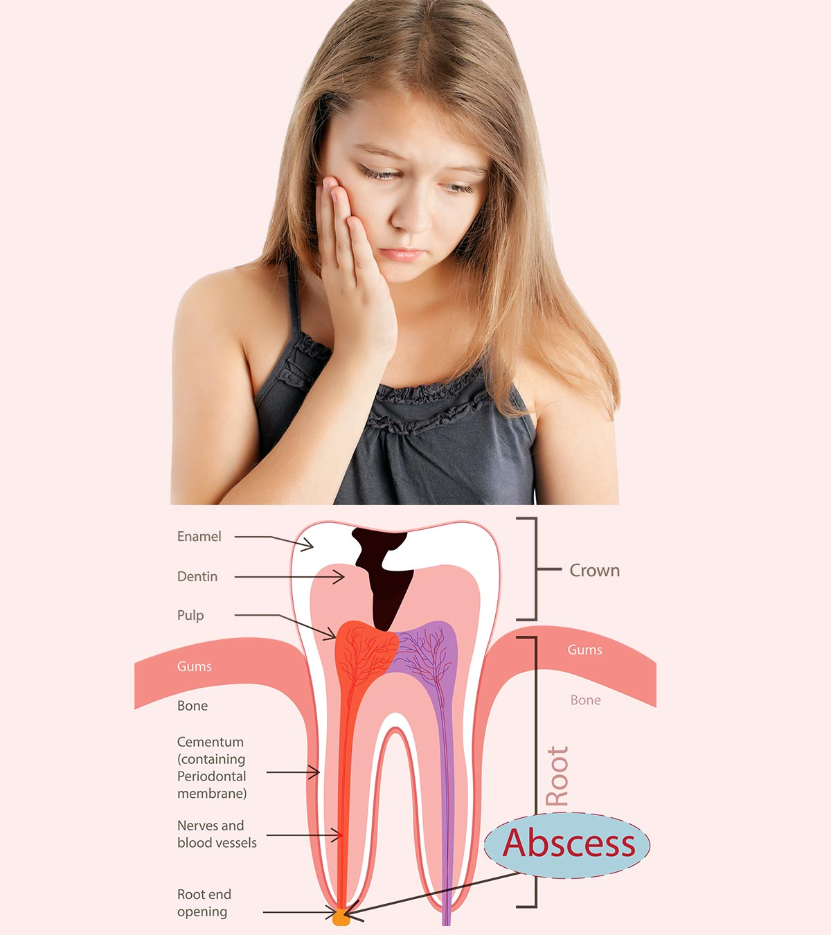 Abscessed Tooth In Child - Causes, Symptoms And Treatment