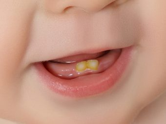 Tooth Discoloration In Babies And Toddlers: Causes And Treatment