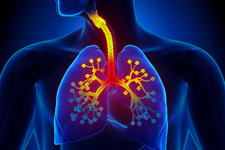 What Is Bronchiolitis
