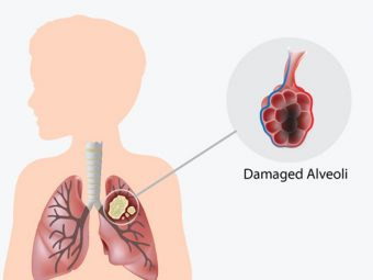 8 Signs And Symptoms Of Lung Cancer In Children
