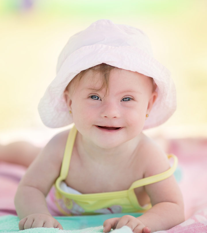 Down Syndrome In Babies: Causes, Symptoms And Treatment