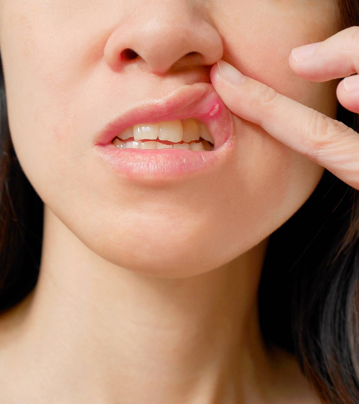 Mouth Ulcers (Canker Sores) In Pregnancy: Causes, Symptoms