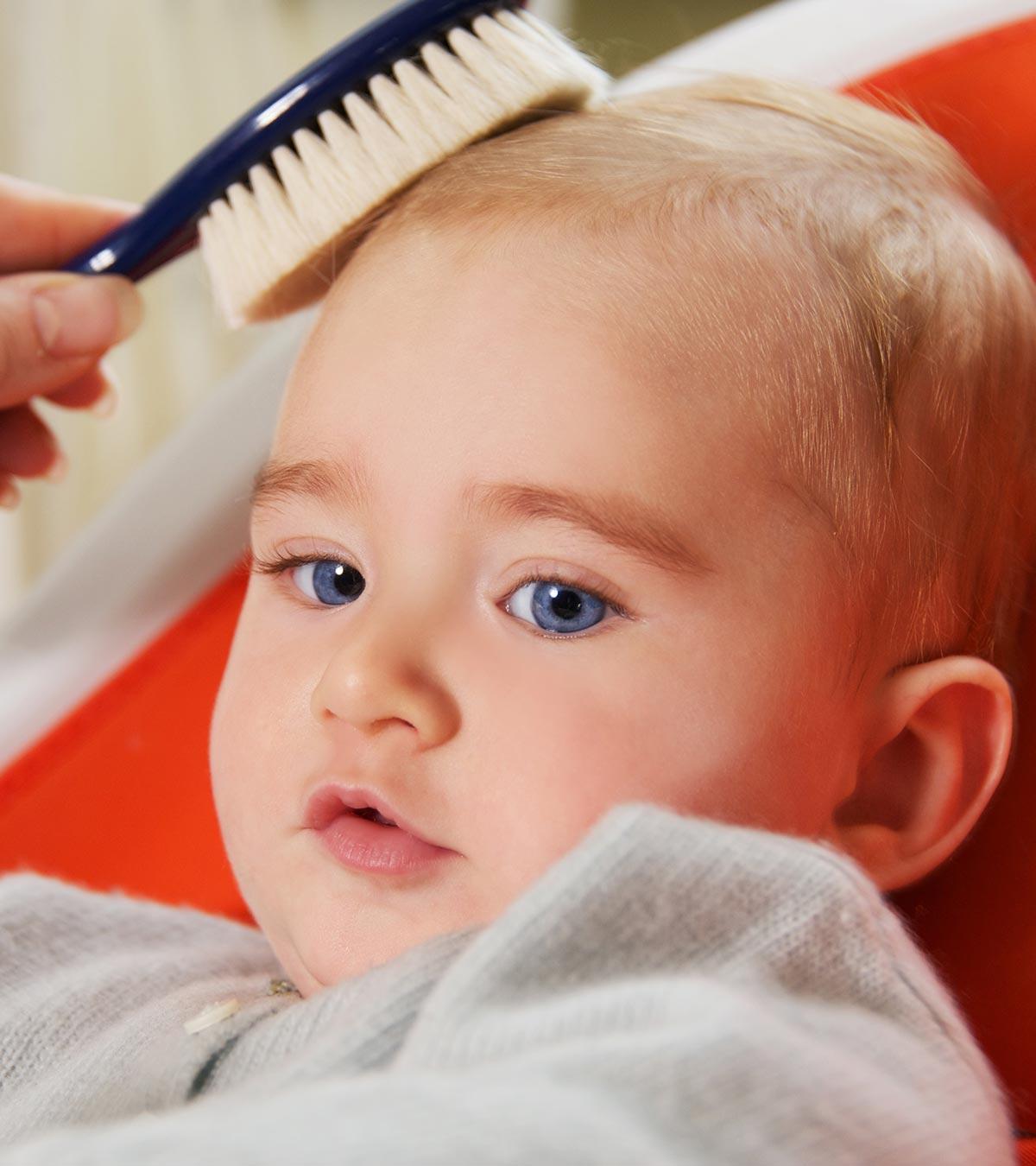diffuse alopecia areata in child