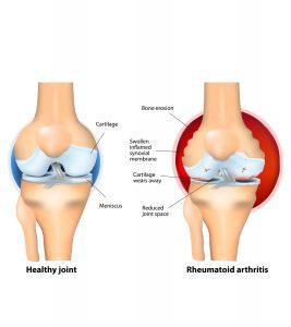 Arthritis After Pregnancy-1