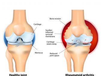 Arthritis (Joint Pain) After Pregnancy: Causes And Tips To Manage