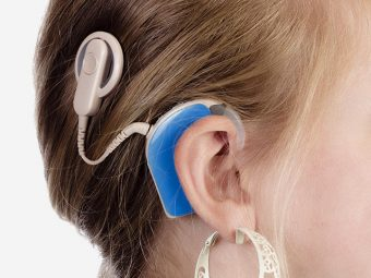 Cochlear Implant In Children - How Does It Work?