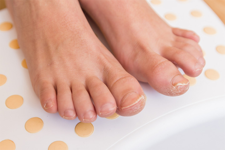 Fungal Nail Infection In Children Symptoms, Remedies And Treatment