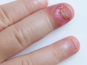 Toddler Staph Infection: Causes, Symptoms, And Treatment