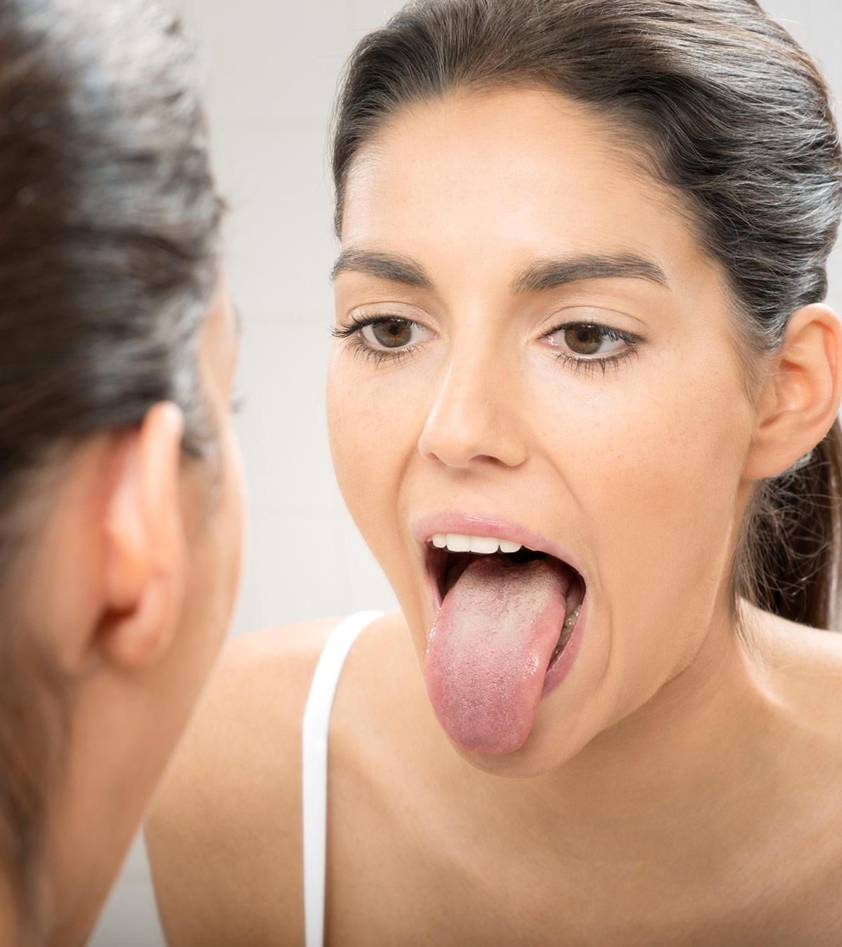 Tongue Sores During Pregnancy - Causes, Symptoms & Treatments