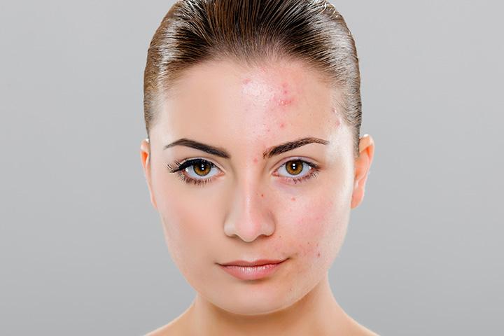 Moderate acne