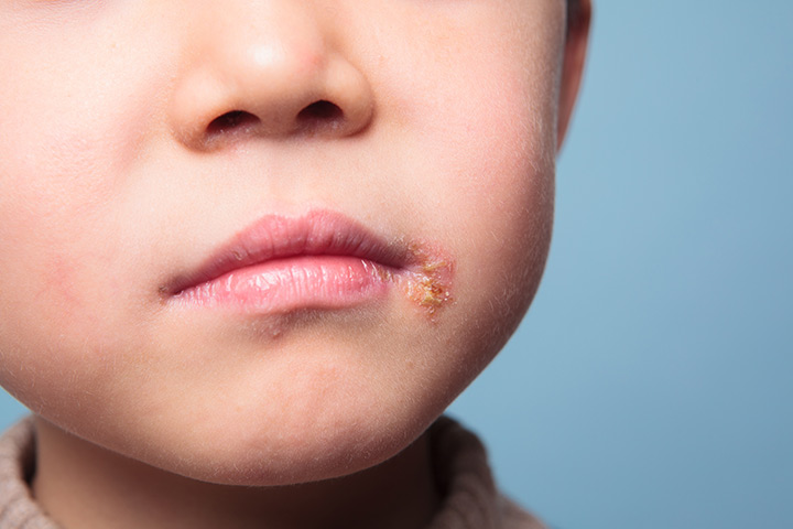 Fever Blisters /Cold Sores In Children – Everything You Need