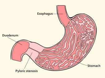 Pyloric Stenosis: Causes, Symptoms And Treatment