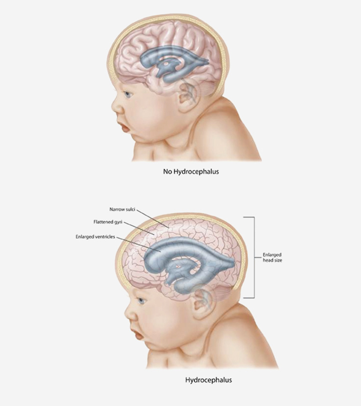 Hydrocephalus In Babies – Causes, Symptoms & Treatment