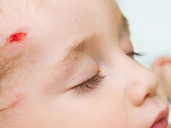 Baby Concussion: Signs, Causes, Treatment And Prevention