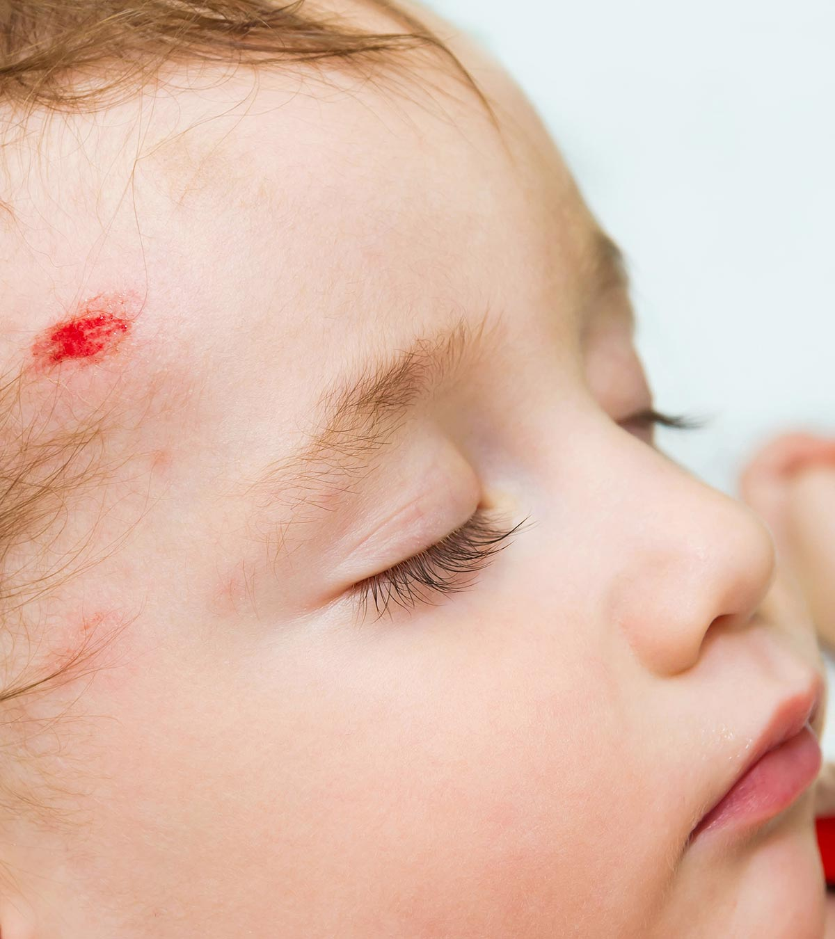 10 Signs Of Concussion In Babies And Ways To Treat It