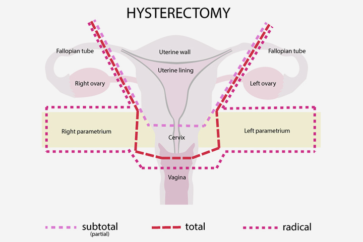Pregnancy After Hysterectomy