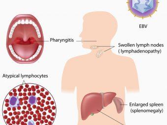 Mononucleosis (Mono) In Teens: Causes, Symptoms & Treatment