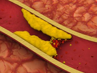 Blood Clots After Birth: What Is Normal, Symptoms And Treatment