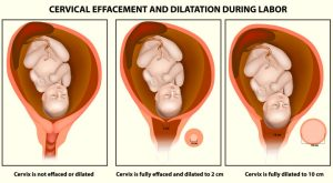 Cervix Dilation Signs, And Procedure To Dilate