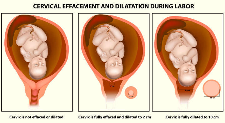 Cervix Dilation: Signs, And Procedure To Dilate