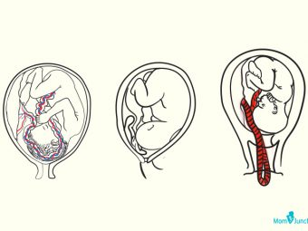 Cord Prolapse: Causes, Diagnosis And Management