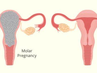 मोलर प्रेगनेंसी (दाढ़ गर्भावस्था) : कारण, लक्षण व उपचार   Molar Pregnancy Kya Hai