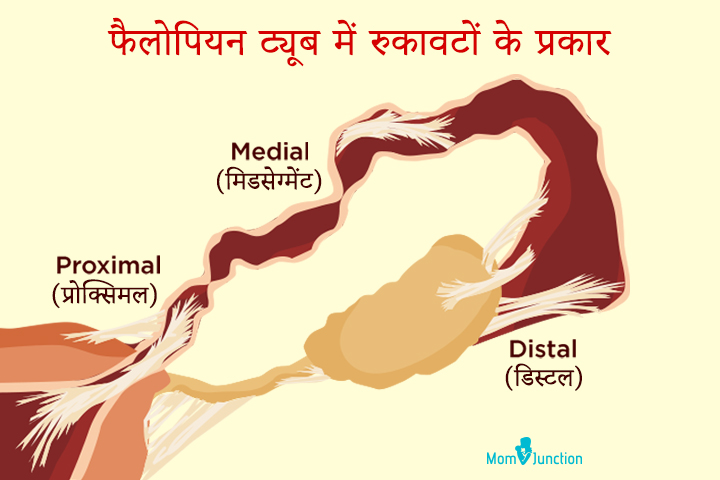 Types of blockages in fallopian tubes