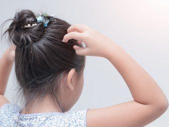 बच्चों में डैंड्रफ (रूसी) के कारण, लक्षण और घरेलू उपाय   Bacho Me Dandruff Kaise Hataye