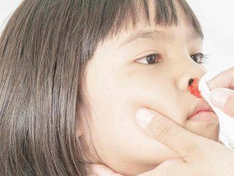 बच्चों की नाक से खून (नकसीर) आना   Baccho Ki Naak Se Khoon Kyu Nikalta Hai