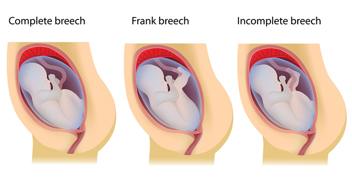 Types of breech position